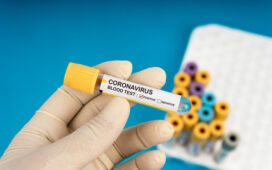 CNM solicita ao Ministério da Saúde regulação de preços de equipamentos e testes para Covid-19